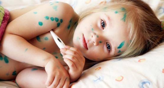 Những kiến thức bắt buộc phải biết về bệnh thủy đậu ở trẻ mầm non