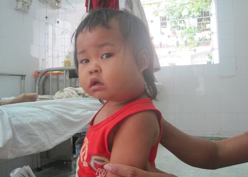 kidsonline-Bệnh quai bị ở trẻ em (P2): Cách chăm sóc trẻ bị bệnh quai bị