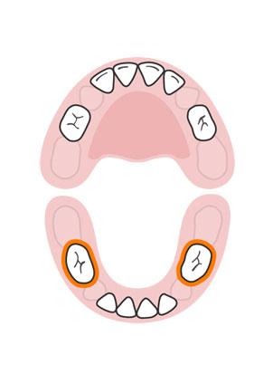 kidsonline-Tất tần tật quá trình moc răng và thay răng của trẻ7