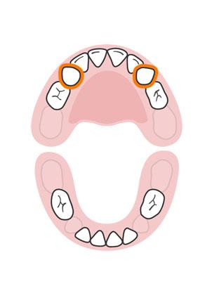 kidsonline-Tất tần tật quá trình moc răng và thay răng của trẻ8