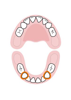 kidsonline-Tất tần tật quá trình moc răng và thay răng của trẻ9